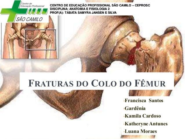 FRATURAS DO COLO DO FÊMUR •Francisca Santos •Gardênia •Kamila Cardoso •Katheryne Antunes •Luana Moraes CENTRO DE EDUCAÇÃO ...