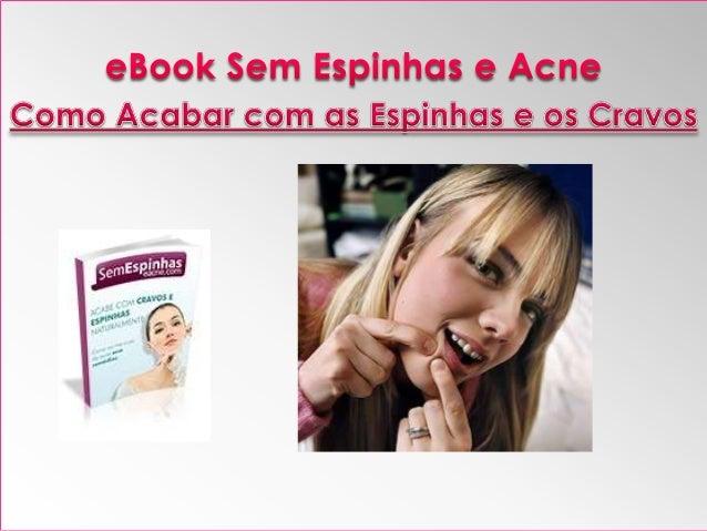 www.semespinhaseacne.com