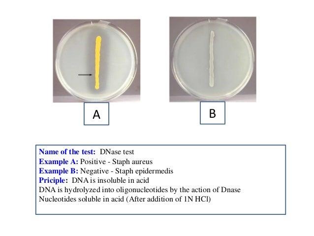 Folin amp Ciocalteus phenol reagent suitable for