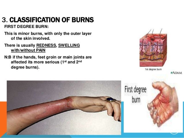 1st And 2nd Degree Burns Fingers