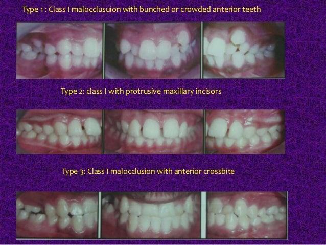 Classification of Malocclusion