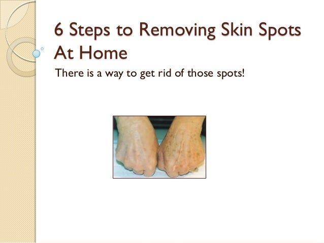 6 Steps to Removing Skin Spots At Home There is a way to get rid of those spots!