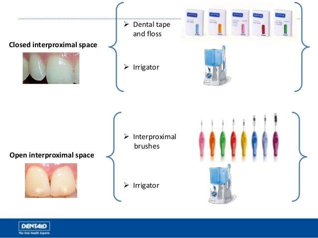 Closed interproximal space Open interproximal space  Dental tape and floss  Interproximal brushes  Irrigator  Irrigator