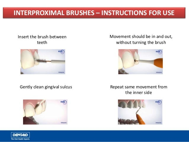 INTERPROXIMAL BRUSHES – INSTRUCTIONS FOR USE Insert the brush between teeth Movement should be in and out, without turning...