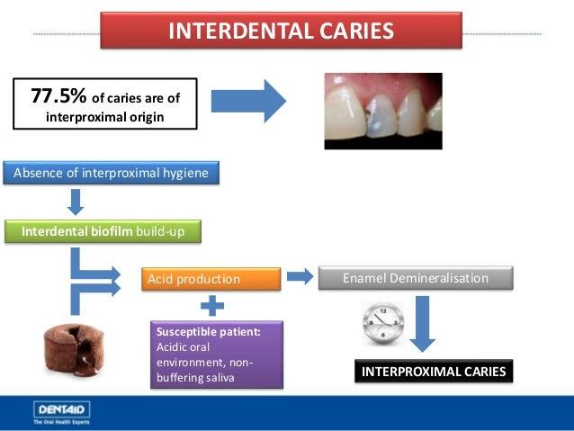 INTERDENTAL CARIES Absence of interproximal hygiene Interdental biofilm build-up Acid production Enamel Demineralisation I...