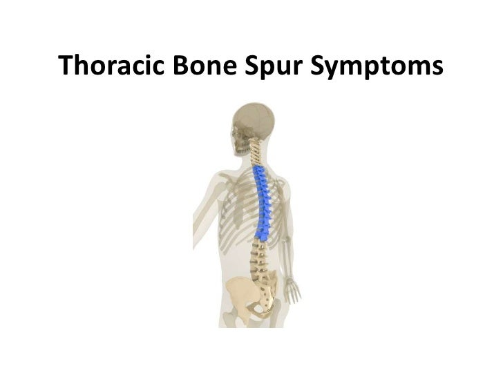Thoracic Bone Spur Symptoms