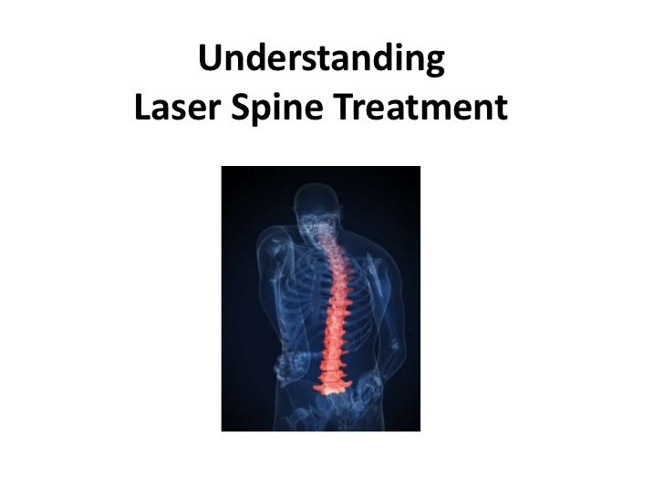 UnderstandingLaser Spine Treatment