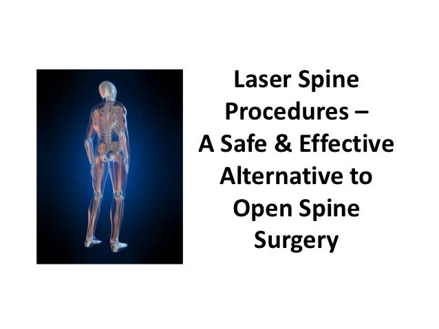 Laser Spine  Procedures –A Safe & Effective  Alternative to   Open Spine     Surgery