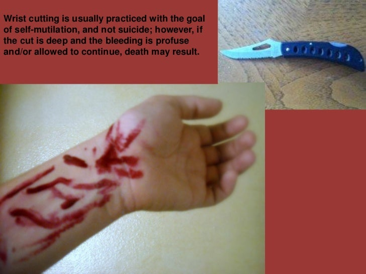 Wrist cutting is usually practiced with the goalof self-mutilation, and not suicide; however, ifthe cut is deep and the bl...