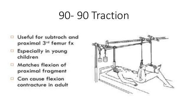 download Einführung in die Netzwerktheorie: Berechnung des stationären und dynamischen Verhaltens von elektrischen Netzwerken Für Studenten der Elektrotechnik 1985