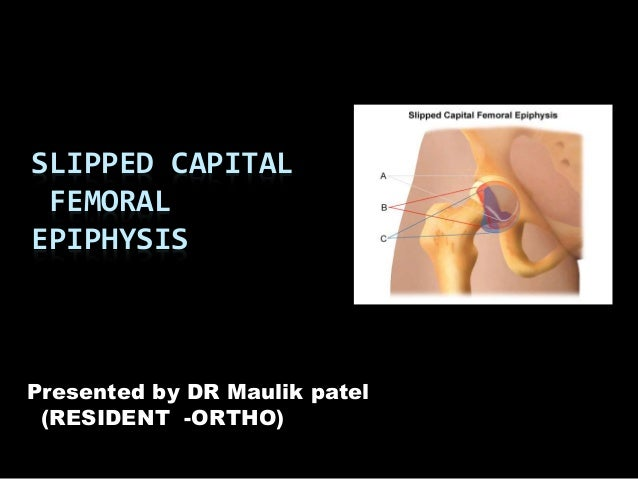slipped epithesis Slipped capital femoral epiphysis (scfe) is an orthopedic condition of children and adolescents the epiphysis is the end of a long bone and is joined to the bo.