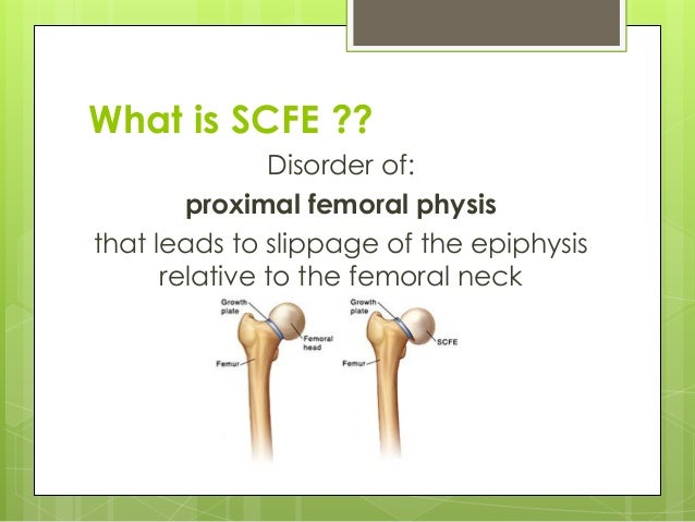 slipped capital femoral epiphysis essay Slipped capital femoral epiphysis remains a diagnostic problem despite numerous papers written on th.