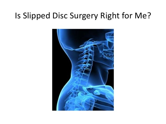 Is Slipped Disc Surgery Right for Me?