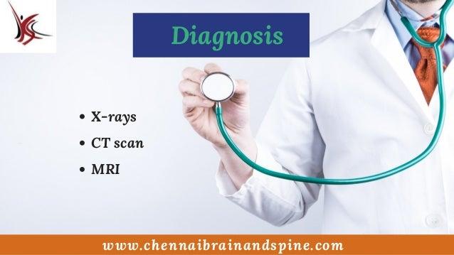 Slipped Disc Treatment In Chennai | Best Neurosurgeon In India