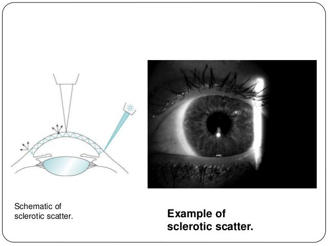 ... 59. Basic Slit Lamp Examination ...