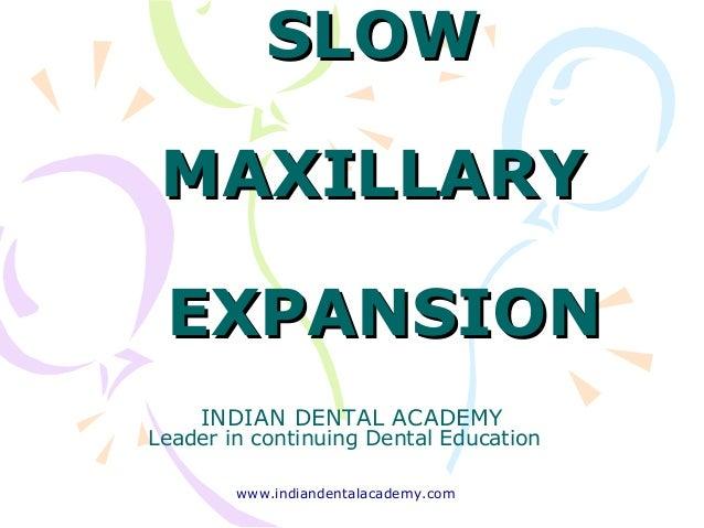 SLOWSLOW MAXILLARYMAXILLARY EXPANSIONEXPANSION INDIAN DENTAL ACADEMY Leader in continuing Dental Education www.indiandenta...