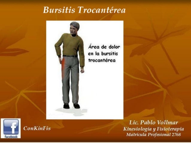 Bursitis Trocantereana