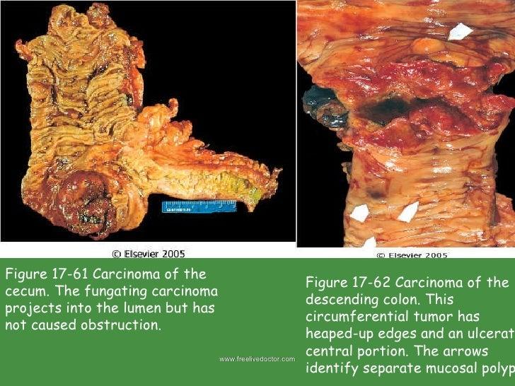 Small And Large Intestine Pathology