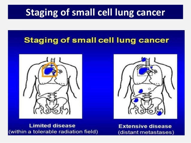 small cell lung cancer management by dr tinku joseph