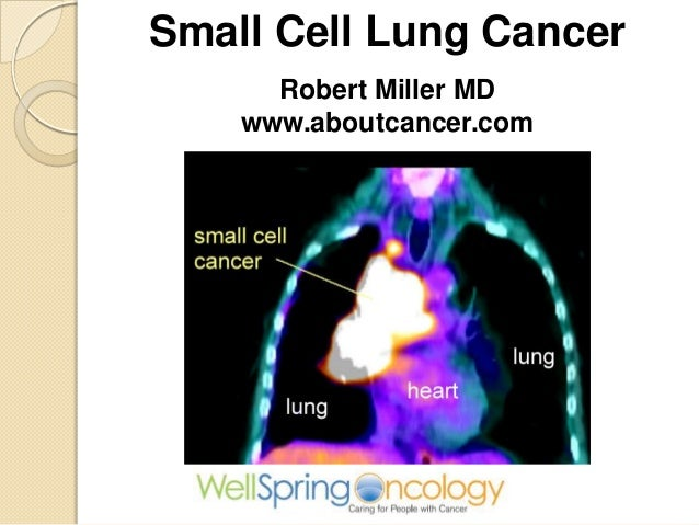 Small Cell Lung CancerRobert Miller MDwww.aboutcancer.com