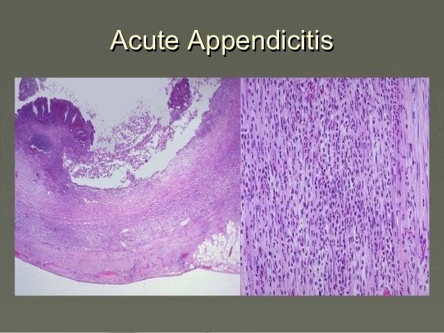 microscopic colitis steroid treatment