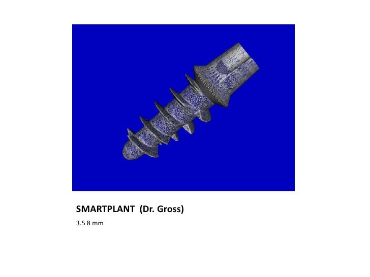 SMARTPLANT (Dr. Gross)3.5 8 mm