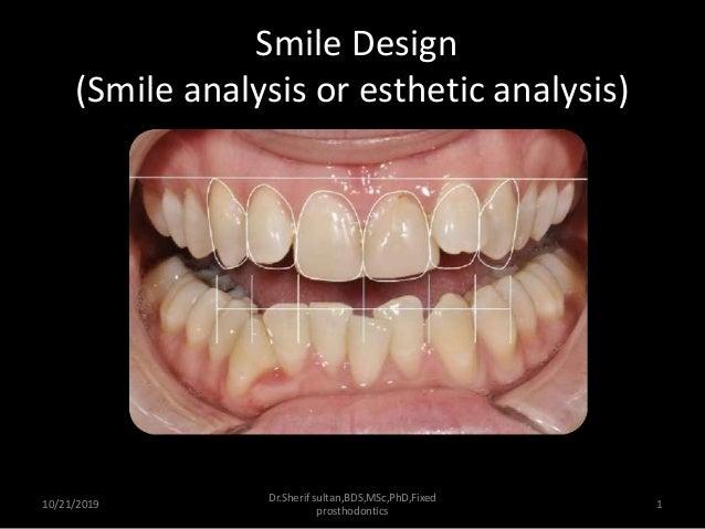 Smile Analysis And Digital Smile Design