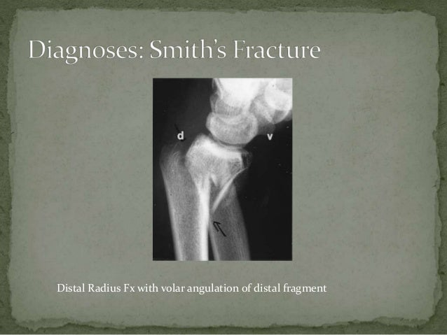 Smith's fracture Power Point