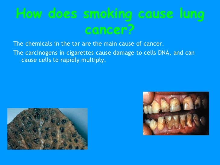 smoking amp cancer ppt