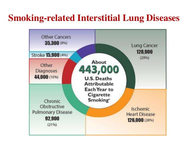 Smoking Related Lung Diseases