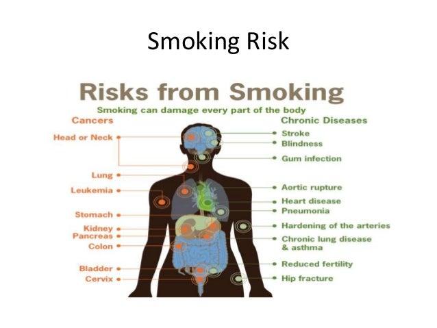 Smoking Alert