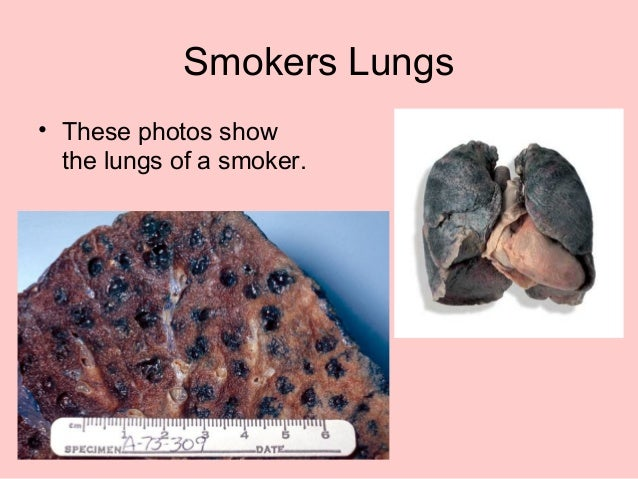 Smokers' Lungs Pictures | Smokers Lungs