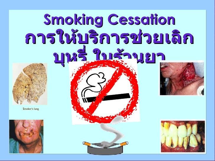 Smoking Cessation การให้บริการช่วยเลิกบุหรี่ ในร้านยา