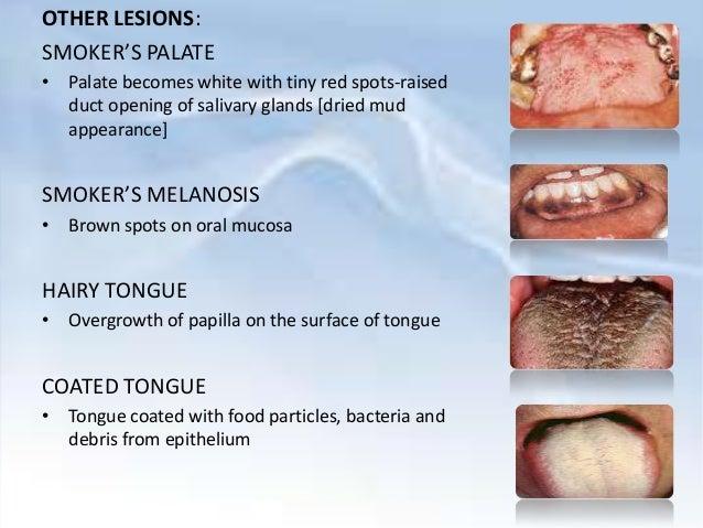 smoking amp periodontium