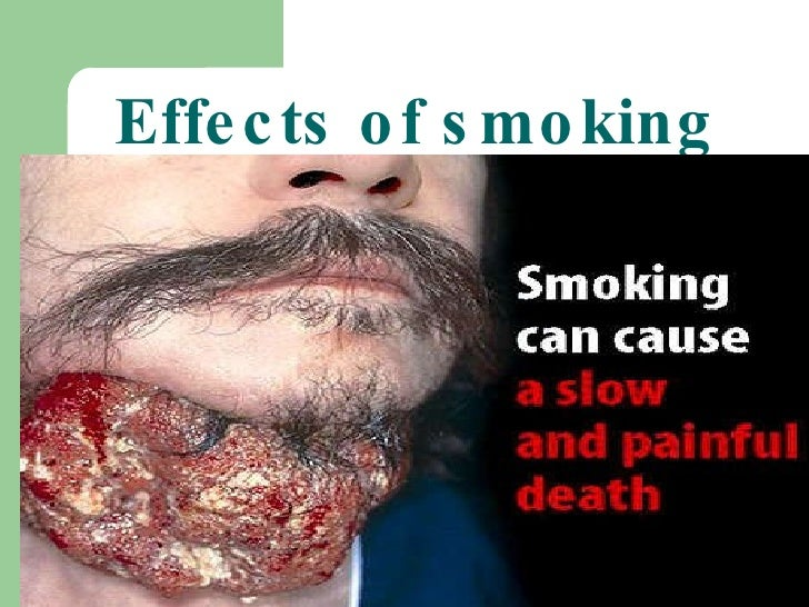 the harmful effects of smoking a Smoking harms nearly every organ of the body some of these harmful and  negative effects are immediate find out the health effects of smoking on different .