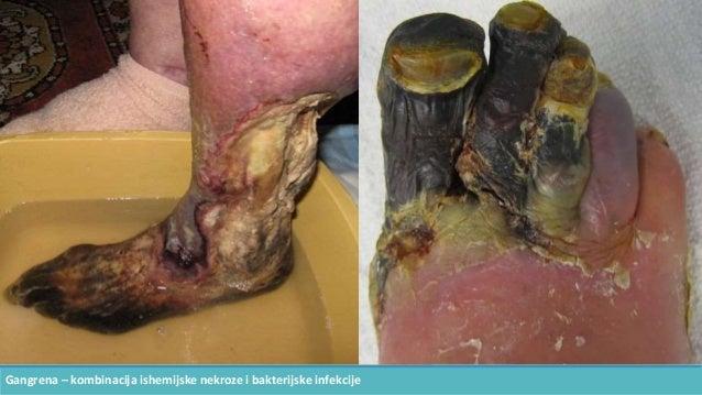 Gangrena – kombinacija ishemijske nekroze i bakterijske infekcije