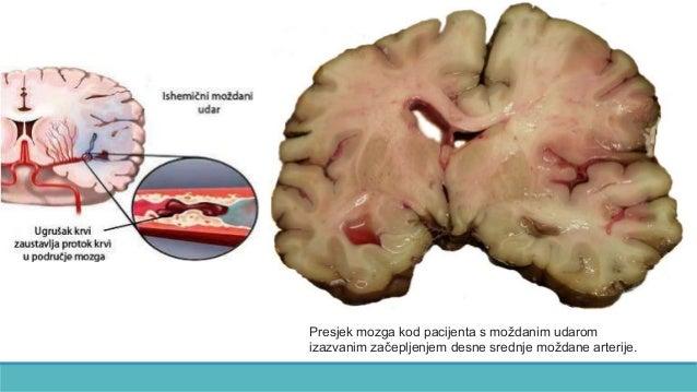 Presjek mozga kod pacijenta s moždanim udarom izazvanim začepljenjem desne srednje moždane arterije.