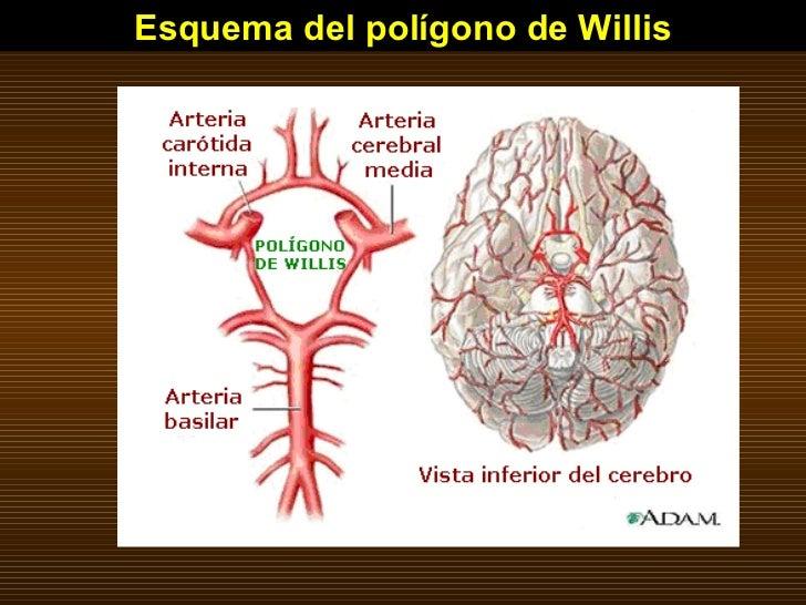 Esquema del polígono de Willis