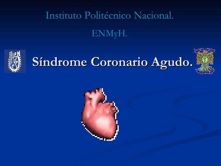 Síndrome Coronario Agudo. Instituto Politécnico Nacional. ENMyH.