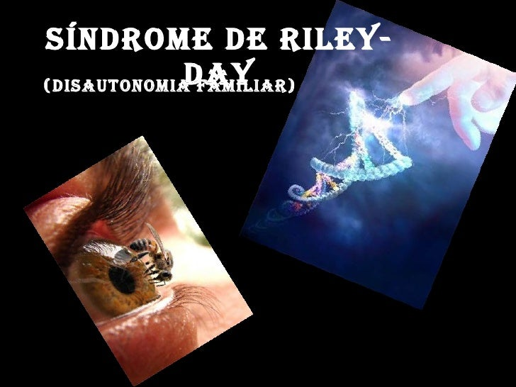 SÍNDROME DE RILEY- DAY (Disautonomia familiar)