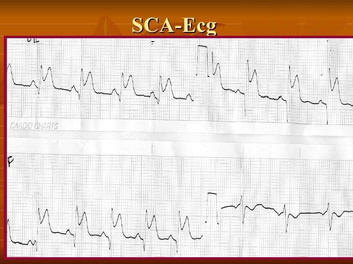 SCA-Ecg