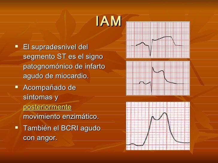 IAM <ul><li>El supradesnivel del segmento ST es el signo patognomónico de infarto agudo de miocardio. </li></ul><ul><li>Ac...
