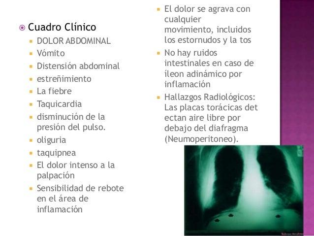 El tratamiento medicamentoso de la neuralgia intercostal de la osteocondrosis
