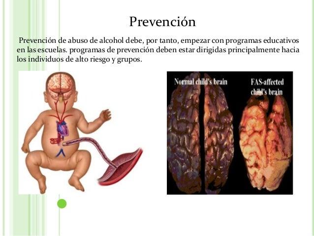 La codificación por la acupuntura del alcoholismo