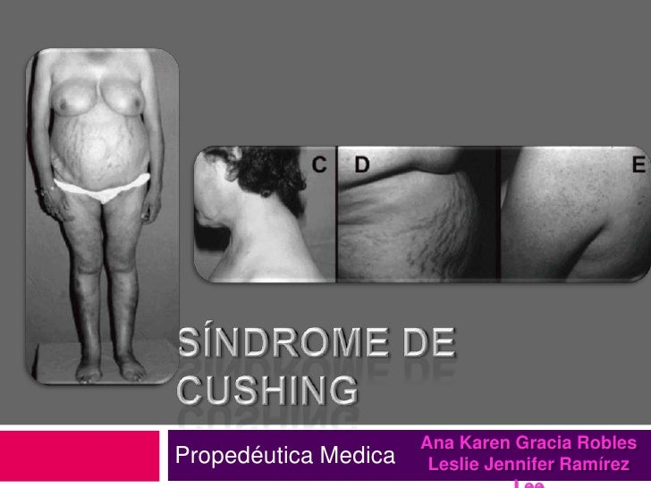 Síndrome De Cushing<br />Propedéutica Medica<br />Ana Karen Gracia Robles<br />Leslie Jennifer Ramírez Lee<br />