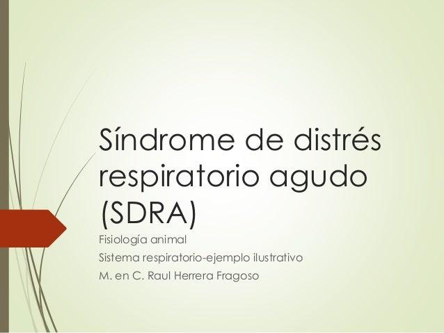 Síndrome de distrés respiratorio agudo (SDRA) Fisiología animal Sistema respiratorio-ejemplo ilustrativo M. en C. Raul Her...