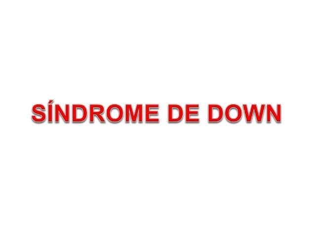 A Síndrome de Down (SD) é uma alteração genética produzida pela presença de um cromosso a mais, o par 21, por isso também ...