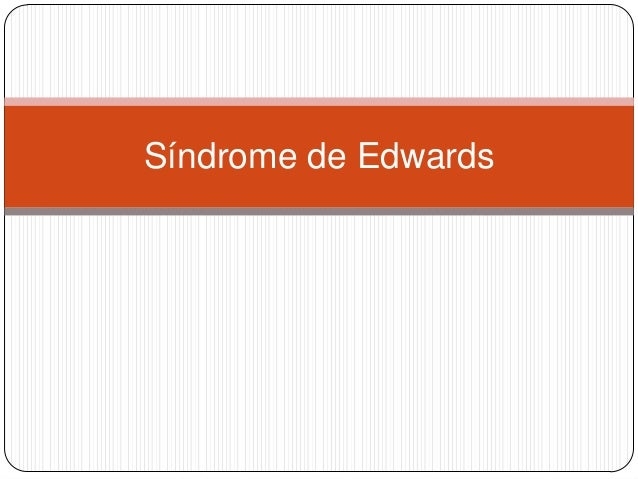 Síndrome de Edwards