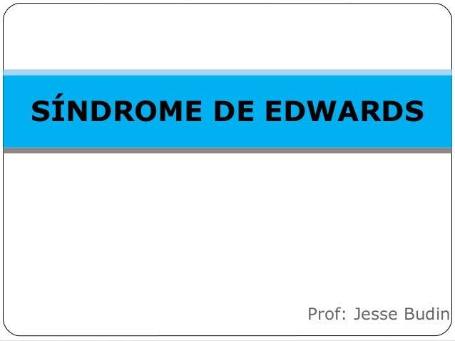 SÍNDROME DE EDWARDS Prof: Jesse Budin