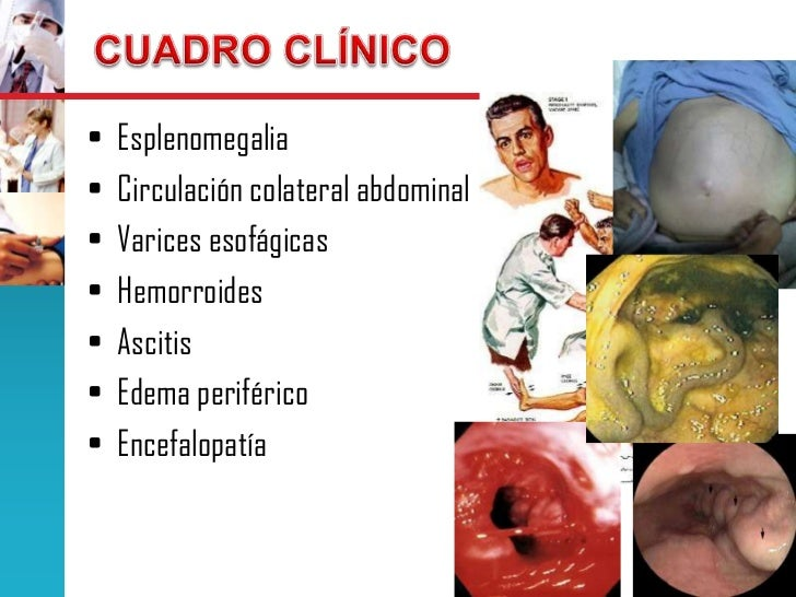 drug interactions flomax viagra